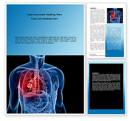 Lung Cancer Word Template, 08239, Medical — PoweredTemplate.com