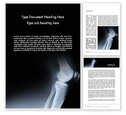 Joint Diseases Word Template, 12278, Medical — PoweredTemplate.com
