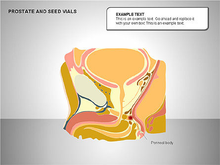 Prostate and Seminal Vesicles Diagram, Slide 12, 00222, Medical Diagrams and Charts — PoweredTemplate.com
