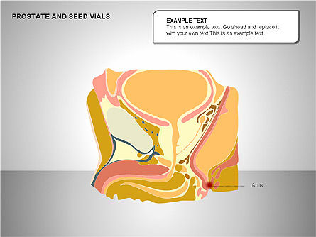 Prostate and Seminal Vesicles Diagram, Slide 13, 00222, Medical Diagrams and Charts — PoweredTemplate.com