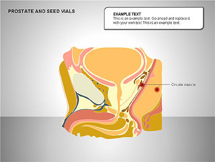 Prostate and Seminal Vesicles Diagram, Slide 15, 00222, Medical Diagrams and Charts — PoweredTemplate.com