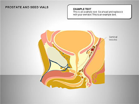 Prostate and Seminal Vesicles Diagram, Slide 16, 00222, Medical Diagrams and Charts — PoweredTemplate.com