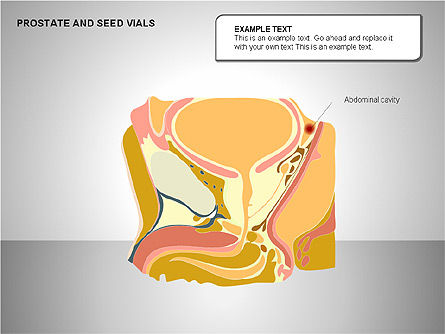 Prostate and Seminal Vesicles Diagram, Slide 17, 00222, Medical Diagrams and Charts — PoweredTemplate.com