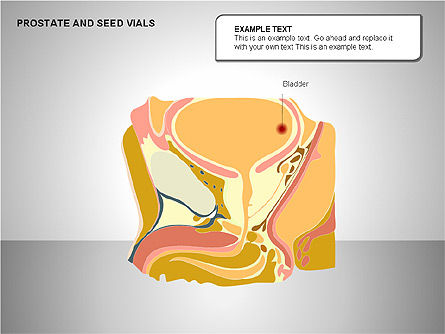 Prostate and Seminal Vesicles Diagram, Slide 18, 00222, Medical Diagrams and Charts — PoweredTemplate.com