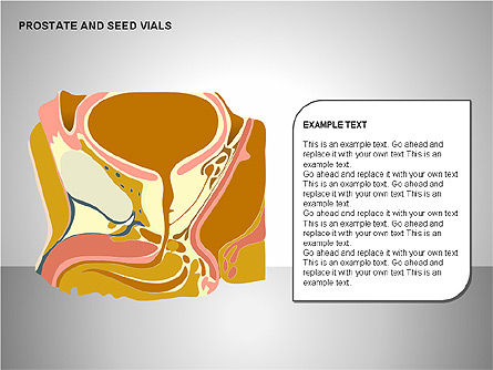 Prostate and Seminal Vesicles Diagram, Slide 19, 00222, Medical Diagrams and Charts — PoweredTemplate.com