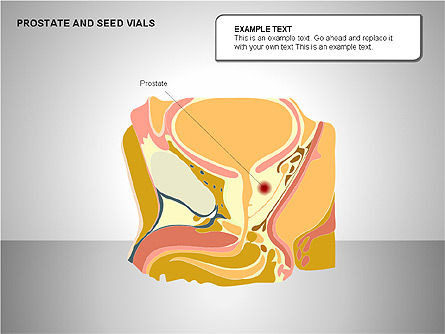 Prostate and Seminal Vesicles Diagram, Slide 3, 00222, Medical Diagrams and Charts — PoweredTemplate.com