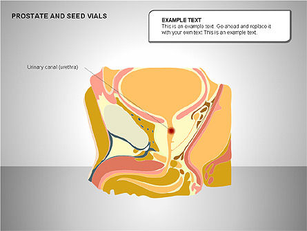 Prostate and Seminal Vesicles Diagram, Slide 4, 00222, Medical Diagrams and Charts — PoweredTemplate.com