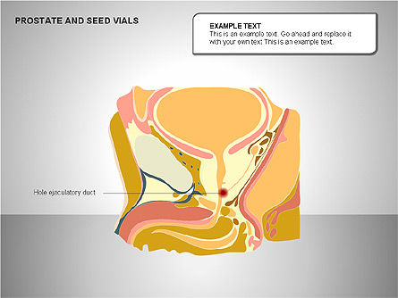 Prostate and Seminal Vesicles Diagram, Slide 7, 00222, Medical Diagrams and Charts — PoweredTemplate.com