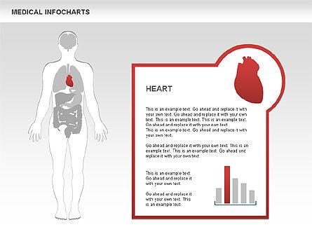 Medical Charts, Slide 4, 00460, Medical Diagrams and Charts — PoweredTemplate.com