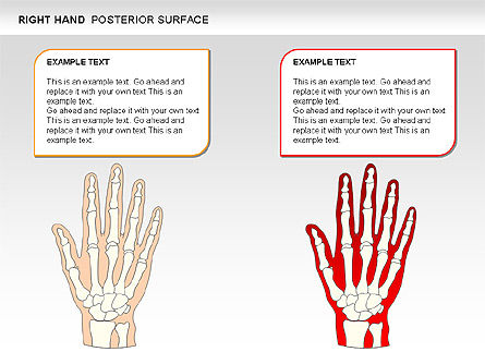 Right Hand Diagram, Slide 25, 00552, Medical Diagrams and Charts — PoweredTemplate.com
