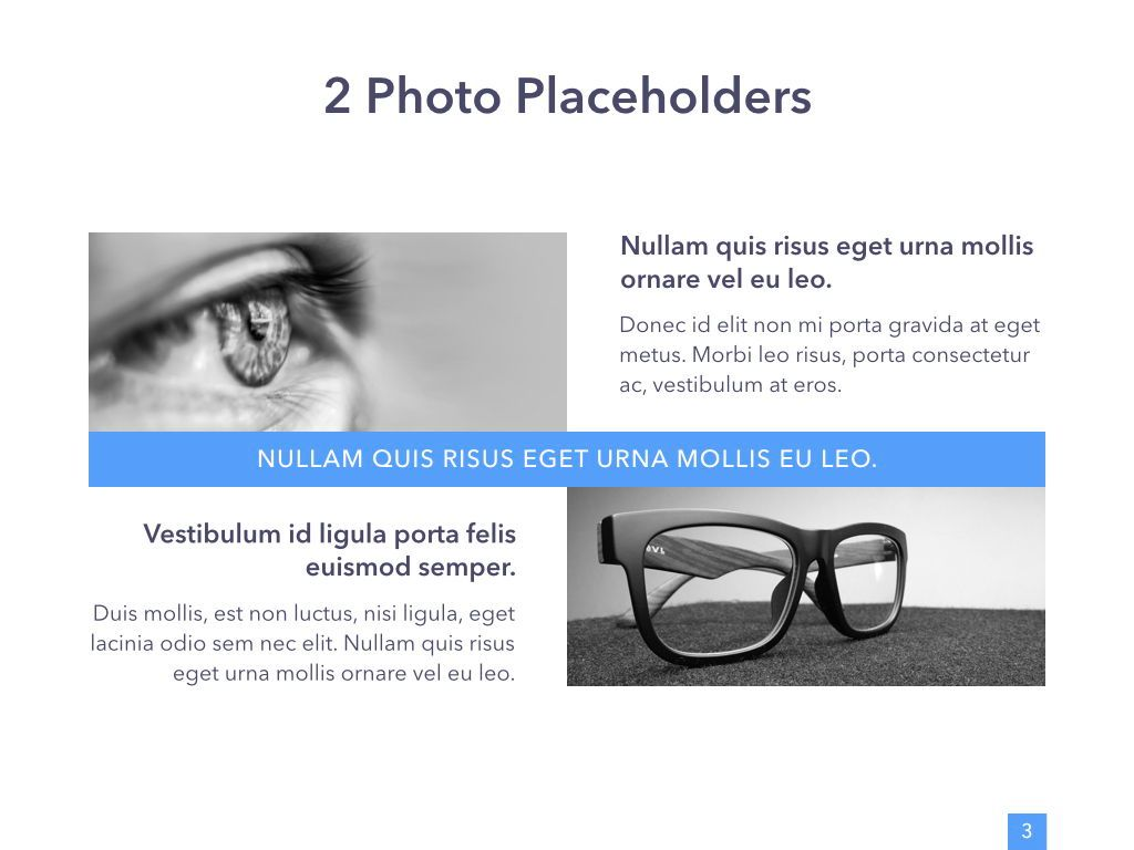 Eye Health Google Slides Template, Slide 4, 04845, Medical Diagrams and Charts — PoweredTemplate.com