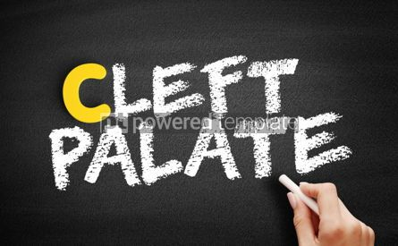 Business: Cleft palate text on blackboard #00426