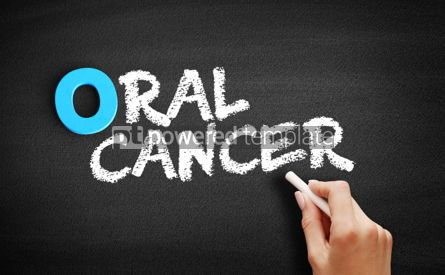 Business: Oral Cancer text on blackboard #00696