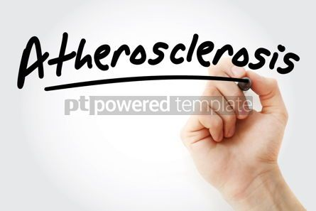 Business: Hand writing Atherosclerosis with marker #08375