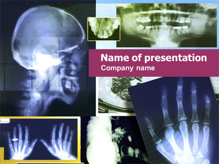 X-ray Images PowerPoint Template, 01184, Medical — PoweredTemplate.com