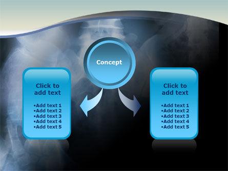 Roentgenoscopy PowerPoint Template, Slide 4, 01276, Medical — PoweredTemplate.com