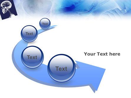 Head Trauma PowerPoint Template Slide 6