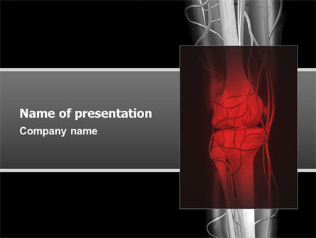 Joint PowerPoint Template, 02985, Medical — PoweredTemplate.com