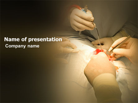 Surgery In Progress PowerPoint Template, 03443, Medical — PoweredTemplate.com