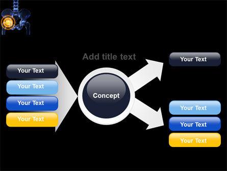 Joint Ache PowerPoint Template Slide 14