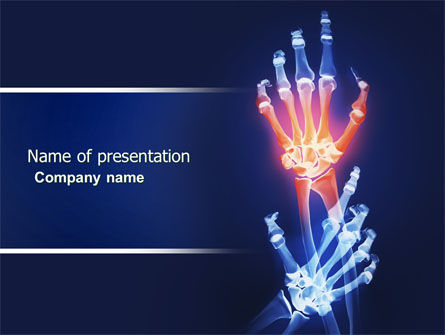 Arthritis PowerPoint Template, 04273, Medical — PoweredTemplate.com