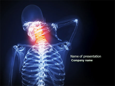 Neck Pain PowerPoint Template, 04292, Medical — PoweredTemplate.com