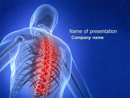 Osteoporosis PowerPoint Template, 04334, Medical — PoweredTemplate.com