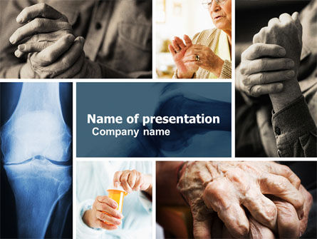 Medical: Illnesses Of Joints PowerPoint Template #05107