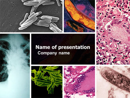 Medical: Tuberculosis PowerPoint Template #05171