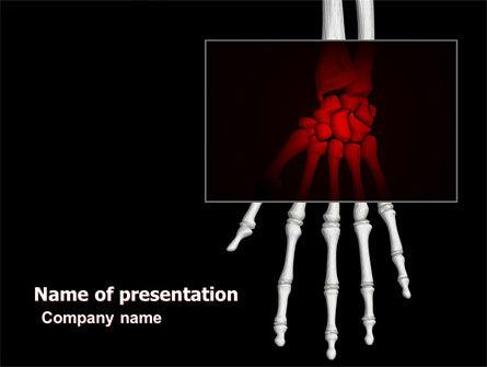 Skeleton Hand PowerPoint Template, 05899, Medical — PoweredTemplate.com