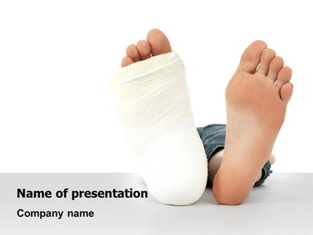 Medical: Foot Plaster PowerPoint Template #07080