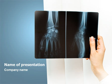 X-Ray Photography PowerPoint Template, 07221, Medical — PoweredTemplate.com