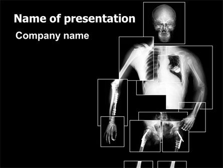 Radiograph PowerPoint Template, 07471, Medical — PoweredTemplate.com