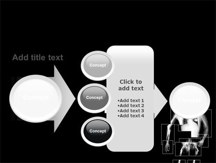 Radiograph PowerPoint Template Slide 17