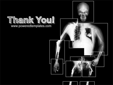 Radiograph PowerPoint Template Slide 20