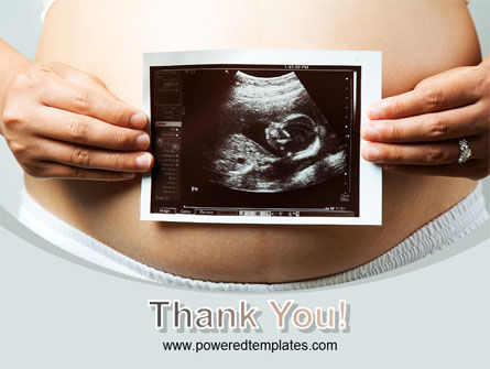 Ultrasound Portrait Of Baby PowerPoint Template Slide 20