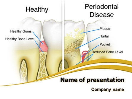 Periodontal Tooth PowerPoint Template