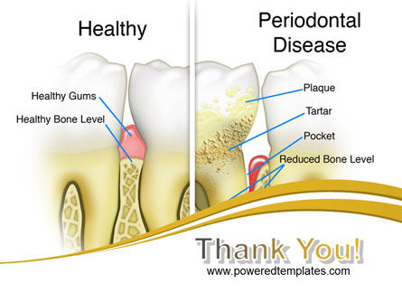 Periodontal Tooth PowerPoint Template Slide 20