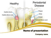 Medical: Periodontal Tooth PowerPoint Template #08024