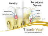 Periodontal Tooth PowerPoint Template#20
