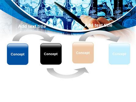 Brain MRI Scan PowerPoint Template, Slide 4, 08061, Medical — PoweredTemplate.com