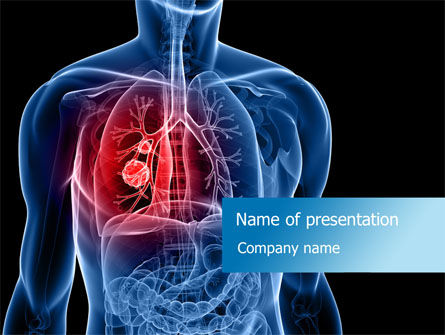free breast cancer powerpoint presentation templates - lung cancer powerpoint template backgrounds 08239
