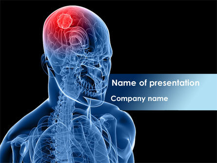 Brain Inflammation PowerPoint Template, 08527, Medical — PoweredTemplate.com