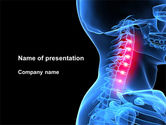 Medical: Pain Of The Neck PowerPoint Template #09023