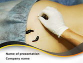 Medical: Leeches Therapy PowerPoint Template #09142
