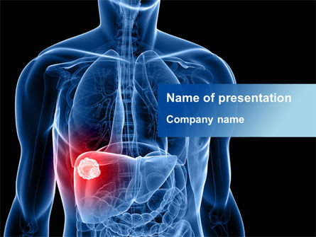 Medical: Liver Disease PowerPoint Template #09158