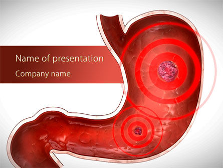 Medical: Stomach Ache PowerPoint Template #09200