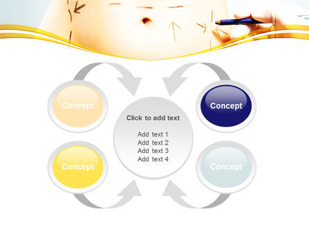 Liposuction PowerPoint Template Slide 6