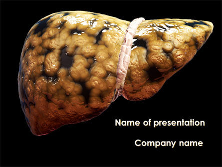 Nonalcoholic fatty liver disease powerpoint template backgrounds nonalcoholic fatty liver disease powerpoint template 09457 medical poweredtemplate toneelgroepblik Gallery