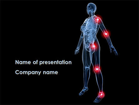 Arthronosos PowerPoint Template, 09610, Medical — PoweredTemplate.com